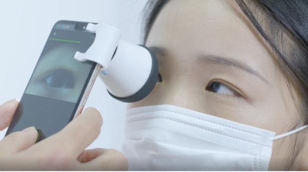 """带你全面了解近视防控""""黑科技""""——角膜塑形镜"""
